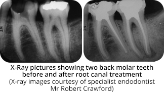 Root Canal Treatment Sevenoaks Kent Endodontics And Root