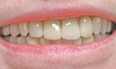 Recontouring of Gum - after