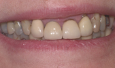 Recontouring of gum- before