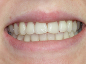 Whitening 2- after