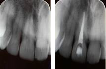 root-canal-treatment-before-after