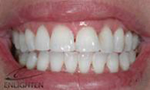 tooth-whitening-dental-cosmetics-our-services-inman-aligners-kent_clip_image002