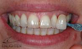 tooth-whitening-dental-cosmetics-our-services-inman-aligners-kent_clip_image004