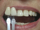 whitening 1 after a